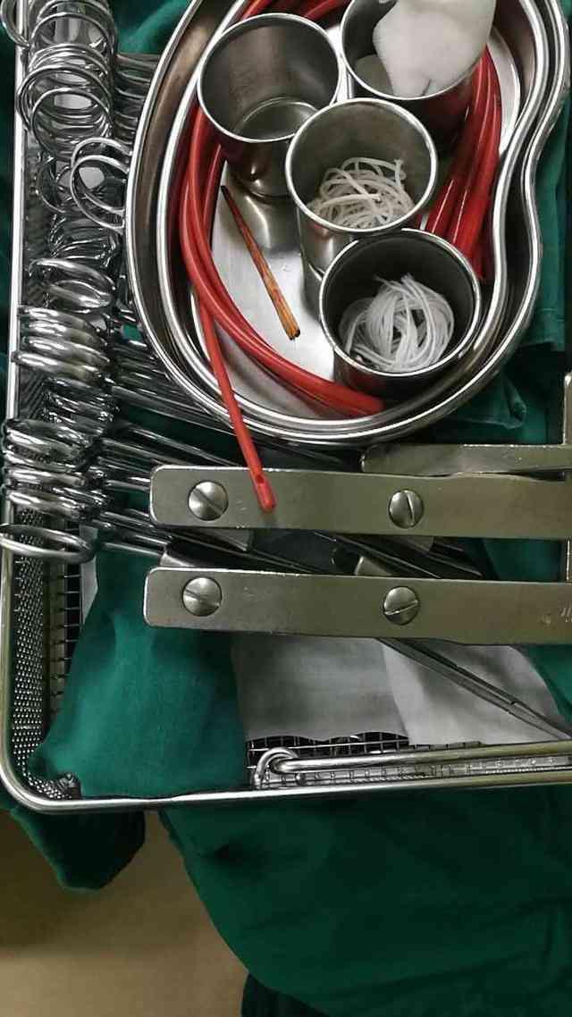 8厘米木钉扎进工人心脏 医院上演现实版外科风云